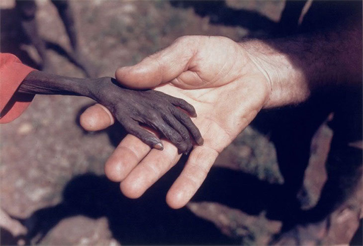 Starving child in Uganda holding hands with a missionary.