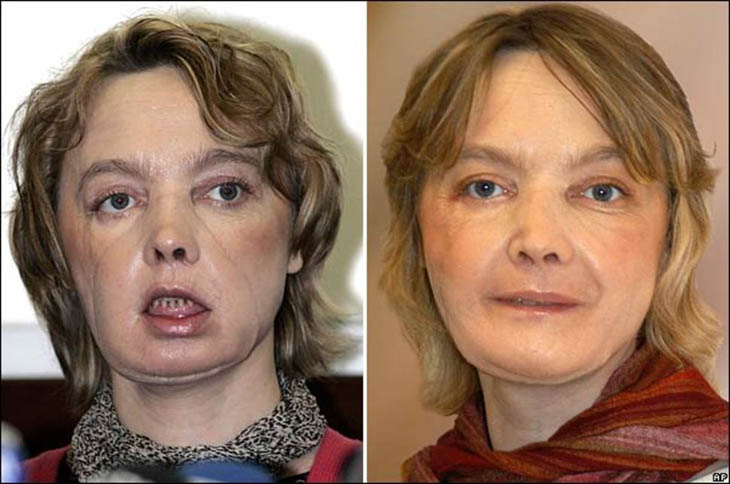 21st century photos - Isabelle Dinoire after receiving the world's first partial face transplant [2005]