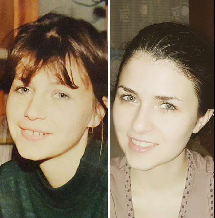My Mom And I At Same Age Of 24. I Look So Much Like Her